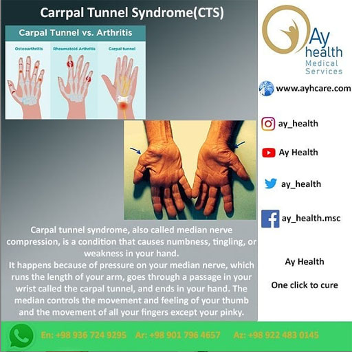 carrpal tunnel syndrome