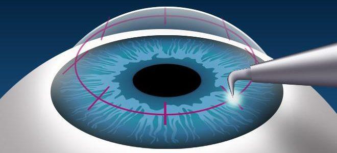 Eyes- decreased vision