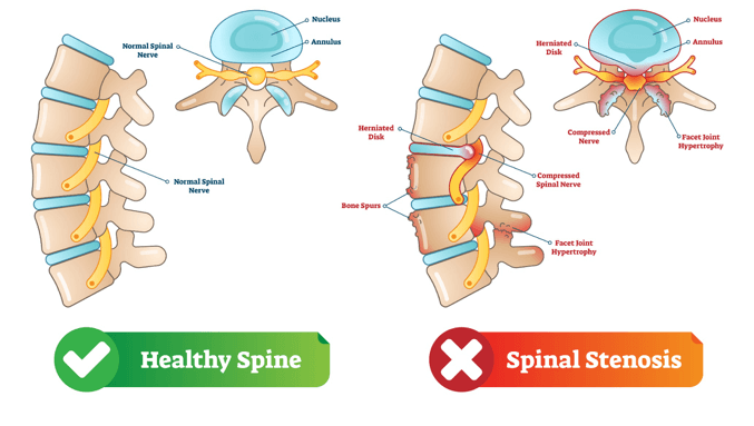 condition-cervical-spine-canal-stenosis