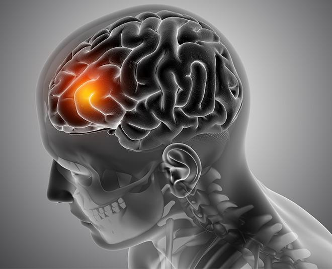 headache-brain-tumour