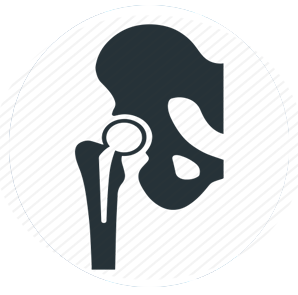 Pelvic joint replacement