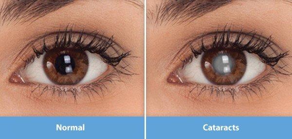 normal eye and cataract