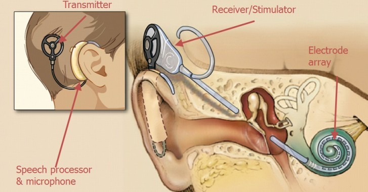 cochlear-implant ayhealth care