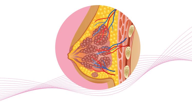 Breast cancer-Lymph nodes