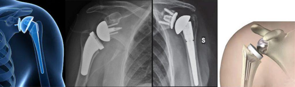 ayhcare shoulder replacement