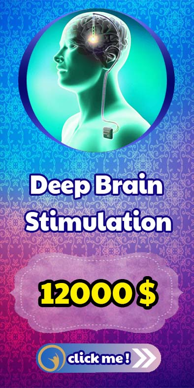deep brain stimulation ayhcare